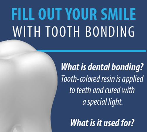 Dental Bonding Infographic