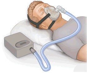 CPAP Machine Used to Treat Sleep Apnea