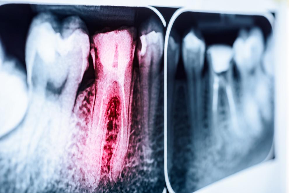 Digital X-Ray Imaging