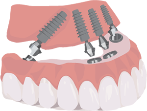 All-On-4 Teeth In a Day Illustration
