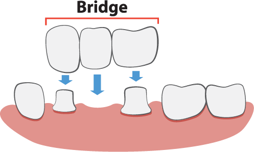 Dental Bridges Illustration