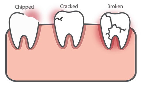 Dental Emergency - Chipped, Cracked or Broken Teeth