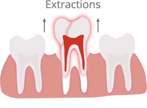 Extractions Illustration