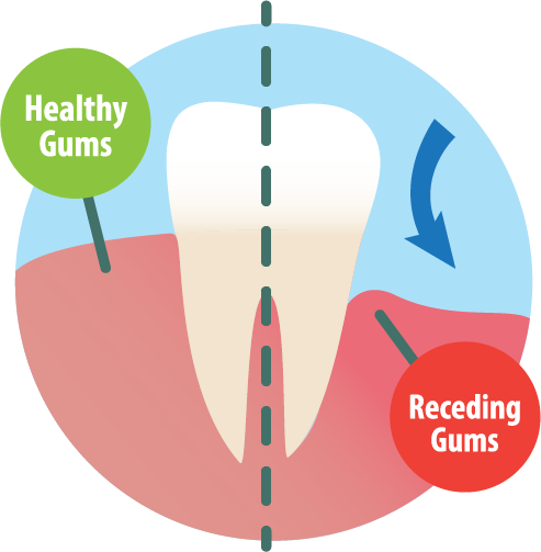 Receding Gums Illustration