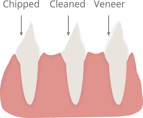 Veneers Illustration