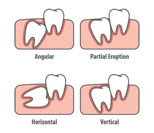 Oral Surgery in Broussard, LA - William S  Darr, DDS